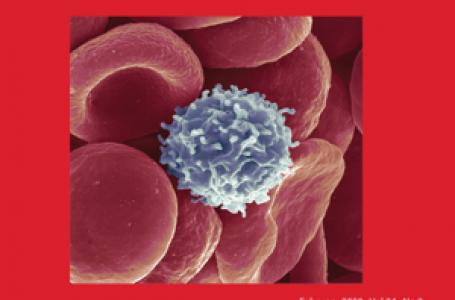Ini Pemicu Utama Penyakit Leukemia